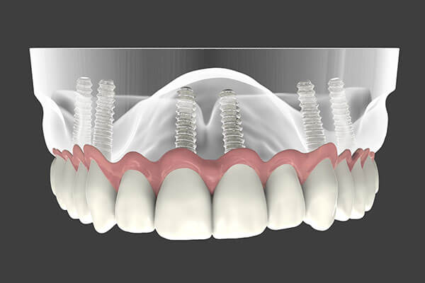 Implant Supported Dentures illustration