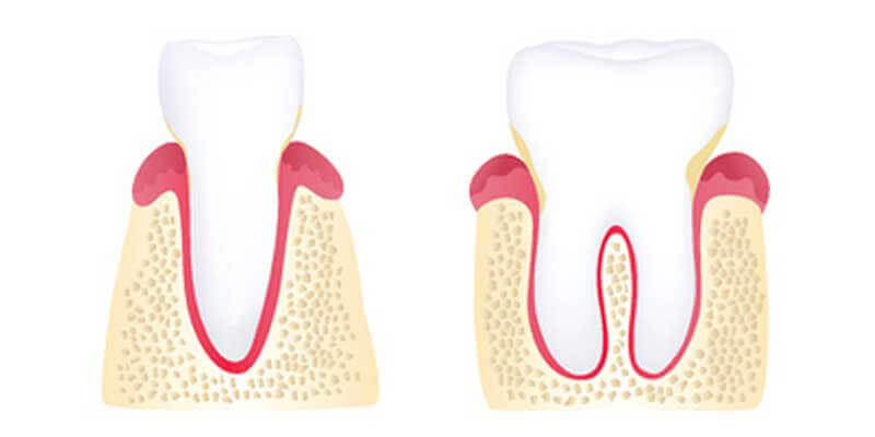 Gingivitis illustration