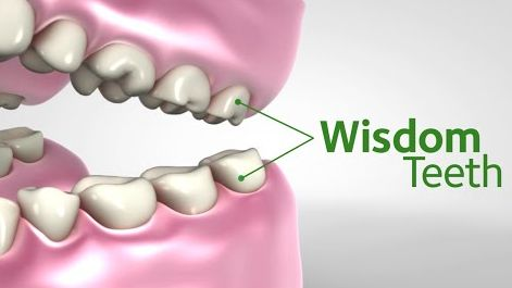graphic indicating where wisdom teeth are